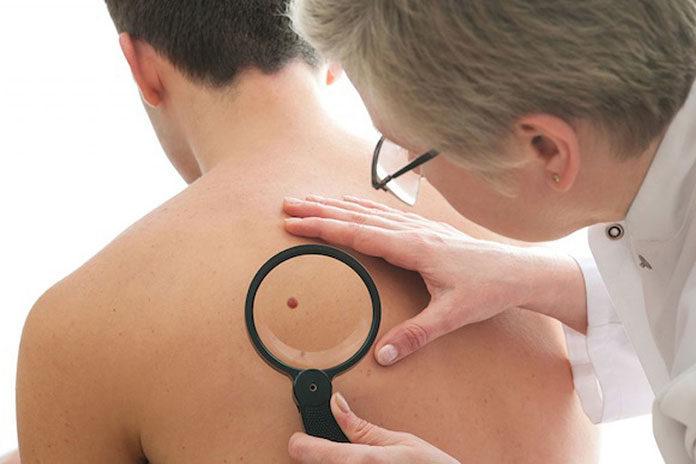 Dermatoskopia, czyli jak zadbać o swoje zdrowie